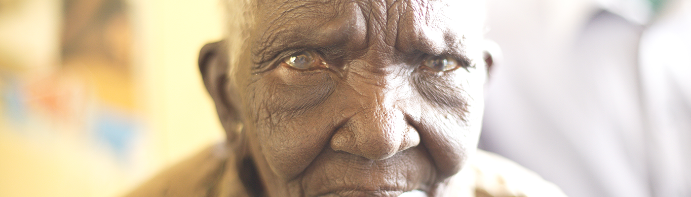 Man with severe cataracts